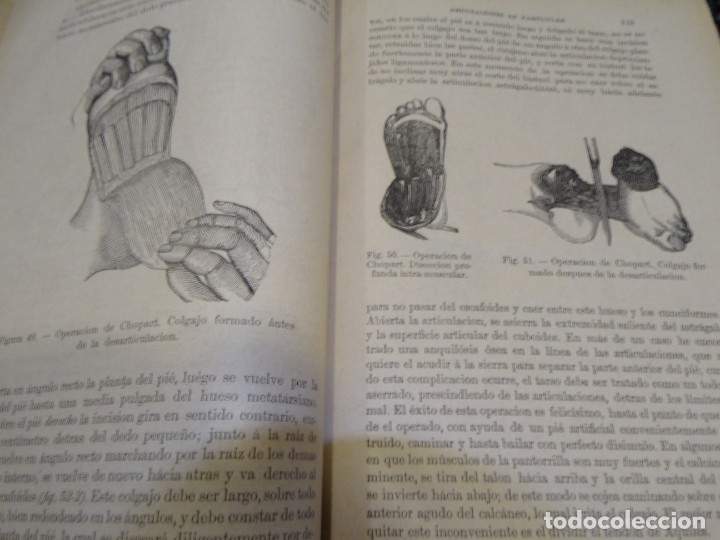 Libros antiguos: LA CIENCIA Y EL ARTE DE LA CIRUGIA. JUAN ERIC ERICHESEN TOMOI- TOMO II (AÑO 1883) TOMO IV 1884 - Foto 17 - 150513216