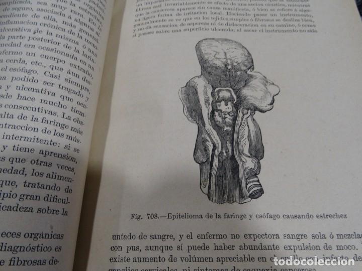 Libros antiguos: LA CIENCIA Y EL ARTE DE LA CIRUGIA. JUAN ERIC ERICHESEN TOMOI- TOMO II (AÑO 1883) TOMO IV 1884 - Foto 19 - 150513216