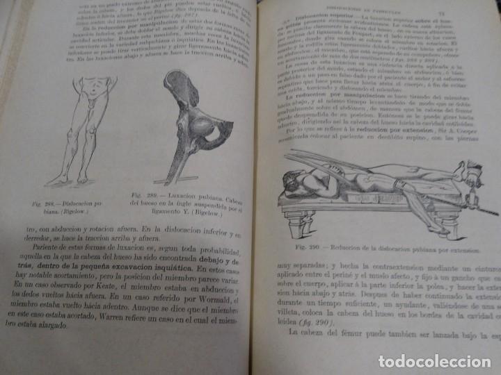 Libros antiguos: LA CIENCIA Y EL ARTE DE LA CIRUGIA. JUAN ERIC ERICHESEN TOMOI- TOMO II (AÑO 1883) TOMO IV 1884 - Foto 18 - 150513216