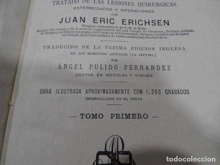 Libros antiguos: LA CIENCIA Y EL ARTE DE LA CIRUGIA. JUAN ERIC ERICHESEN TOMOI- TOMO II (AÑO 1883) TOMO IV 1884 - Foto 12 - 150513216