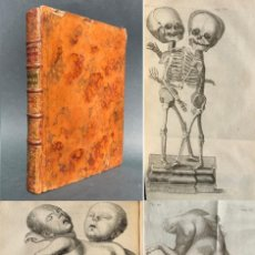 Libros antiguos: 1768 - ANATOMICI ARGUMENTI - ESPECTACULARES GRABADOS - MONSTRUOS HISTORICOS - SIAMESES. Lote 153975374