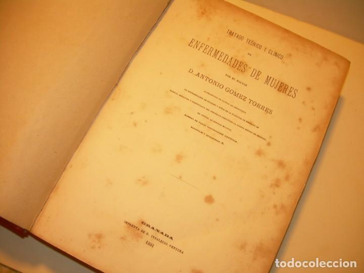 Libros antiguos: LIBRO CON LOMO DE PIEL Y NERVIOS....TRATADO DE ENFERMEDADES DE MUJERES...AÑO. 1881. - Foto 3 - 153996302