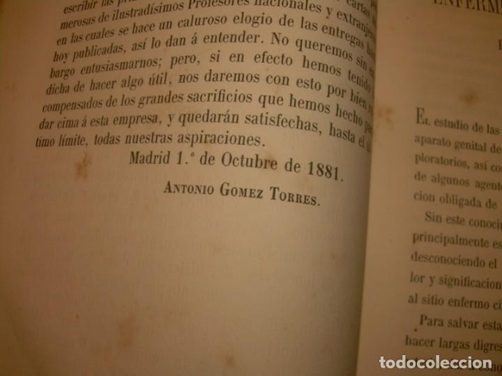 Libros antiguos: LIBRO CON LOMO DE PIEL Y NERVIOS....TRATADO DE ENFERMEDADES DE MUJERES...AÑO. 1881. - Foto 6 - 153996302