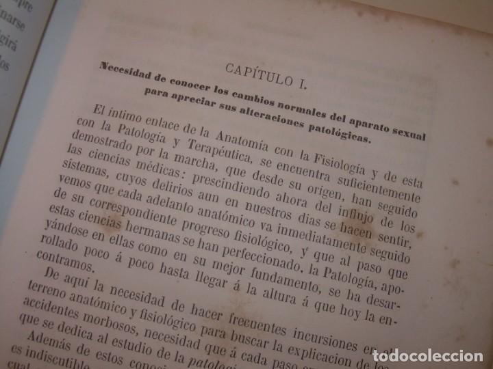 Libros antiguos: LIBRO CON LOMO DE PIEL Y NERVIOS....TRATADO DE ENFERMEDADES DE MUJERES...AÑO. 1881. - Foto 8 - 153996302