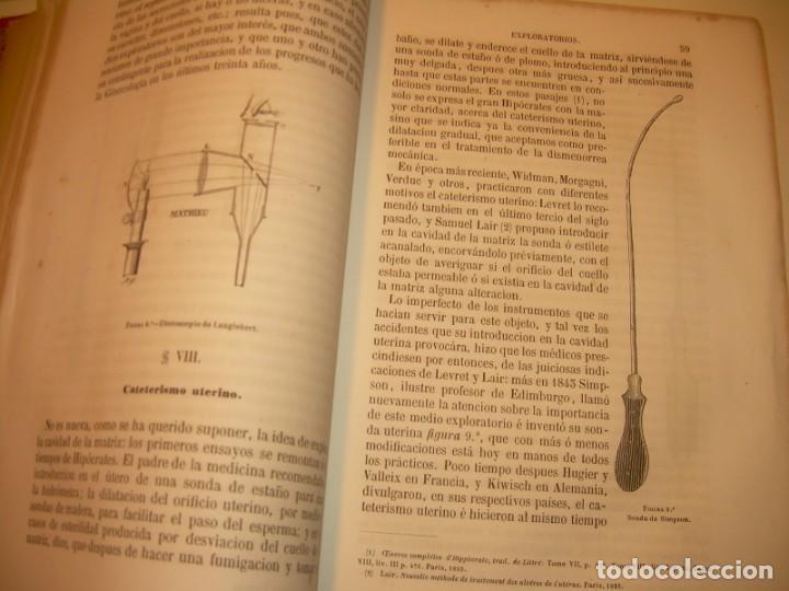 Libros antiguos: LIBRO CON LOMO DE PIEL Y NERVIOS....TRATADO DE ENFERMEDADES DE MUJERES...AÑO. 1881. - Foto 9 - 153996302
