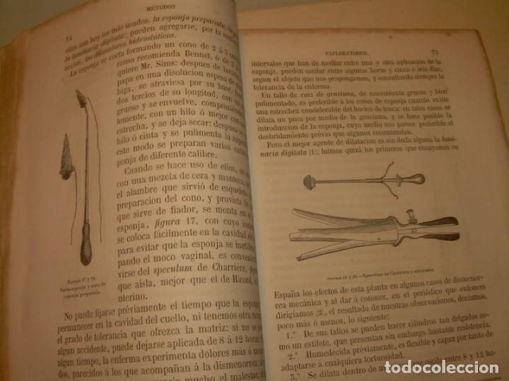 Libros antiguos: LIBRO CON LOMO DE PIEL Y NERVIOS....TRATADO DE ENFERMEDADES DE MUJERES...AÑO. 1881. - Foto 10 - 153996302