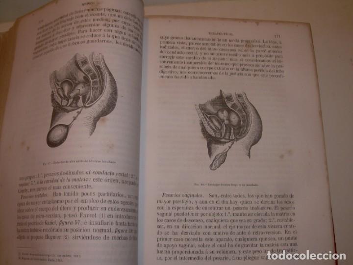 Libros antiguos: LIBRO CON LOMO DE PIEL Y NERVIOS....TRATADO DE ENFERMEDADES DE MUJERES...AÑO. 1881. - Foto 12 - 153996302