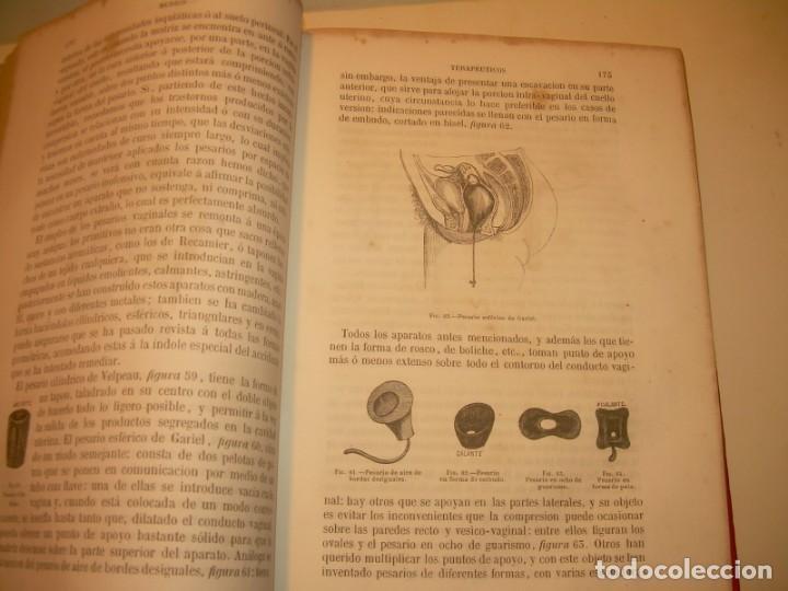Libros antiguos: LIBRO CON LOMO DE PIEL Y NERVIOS....TRATADO DE ENFERMEDADES DE MUJERES...AÑO. 1881. - Foto 13 - 153996302