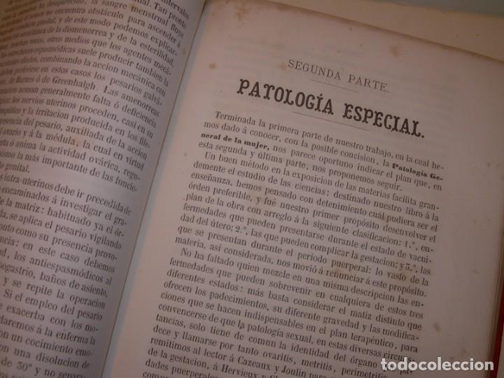 Libros antiguos: LIBRO CON LOMO DE PIEL Y NERVIOS....TRATADO DE ENFERMEDADES DE MUJERES...AÑO. 1881. - Foto 14 - 153996302