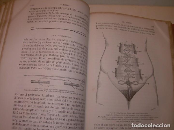 Libros antiguos: LIBRO CON LOMO DE PIEL Y NERVIOS....TRATADO DE ENFERMEDADES DE MUJERES...AÑO. 1881. - Foto 16 - 153996302