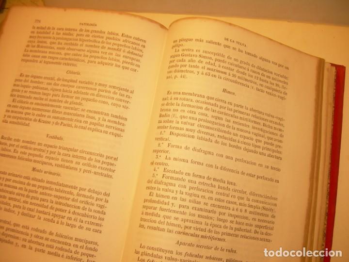 Libros antiguos: LIBRO CON LOMO DE PIEL Y NERVIOS....TRATADO DE ENFERMEDADES DE MUJERES...AÑO. 1881. - Foto 18 - 153996302