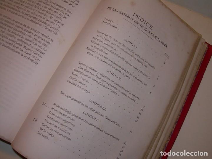 Libros antiguos: LIBRO CON LOMO DE PIEL Y NERVIOS....TRATADO DE ENFERMEDADES DE MUJERES...AÑO. 1881. - Foto 19 - 153996302