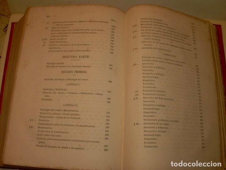 Libros antiguos: LIBRO CON LOMO DE PIEL Y NERVIOS....TRATADO DE ENFERMEDADES DE MUJERES...AÑO. 1881. - Foto 21 - 153996302