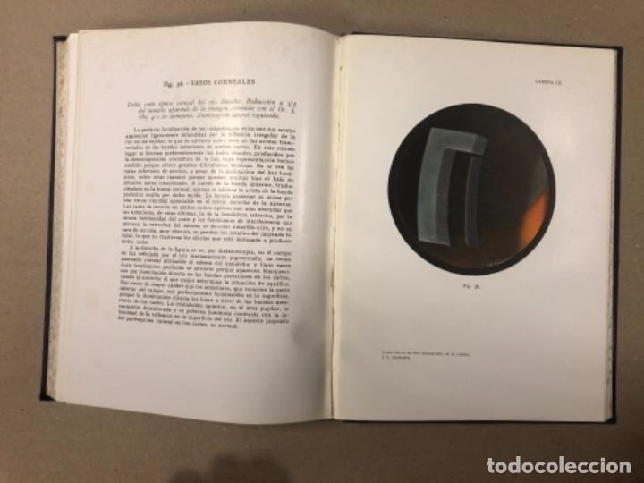 Libros antiguos: LIBRO-ATLAS DE BIO-MICROSCOPÍA DE LA CÓRNEA... J. LÓPEZ - LACARRÈRE. - Foto 7 - 154621174