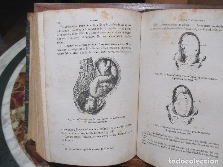 Libros antiguos: Tratado de Medicina Cirugía y Partos,(1871) - Foto 4 - 154960114