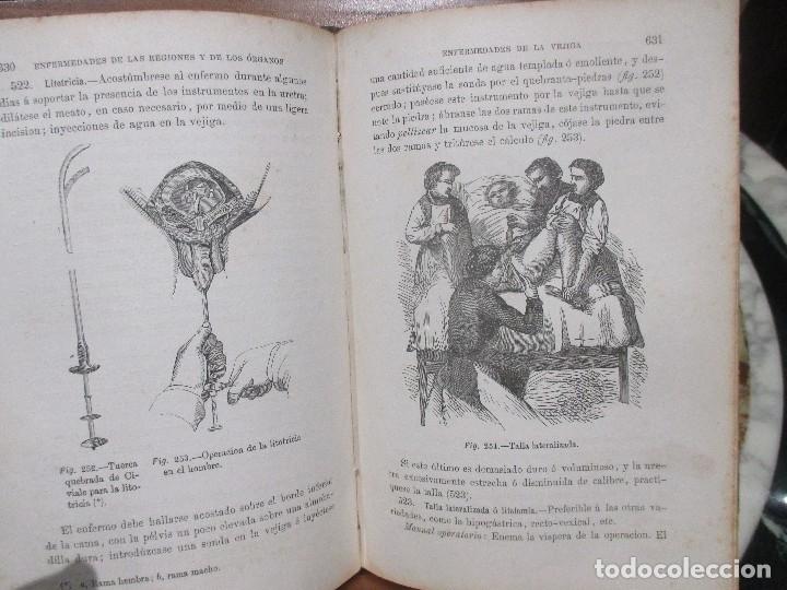 Libros antiguos: Tratado de Medicina Cirugía y Partos,(1871) - Foto 5 - 154960114