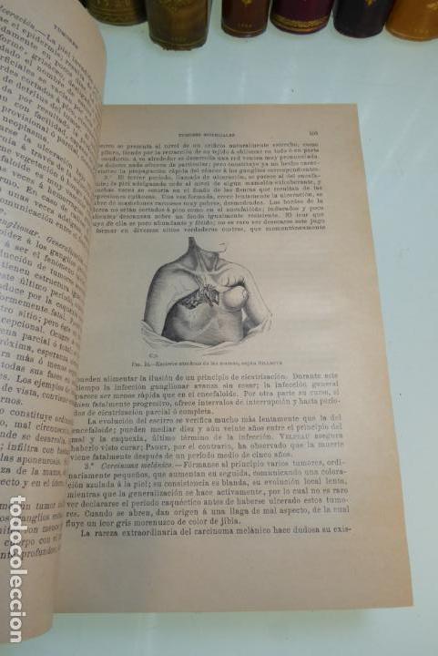 Libros antiguos: Tratado de patología externa. Boulet y Bousquet. Tomo primero. Barcelona. 1892. - Foto 5 - 167827492