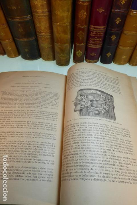 Libros antiguos: Tratado de patología externa. Boulet y Bousquet. Tomo primero. Barcelona. 1892. - Foto 10 - 167827492