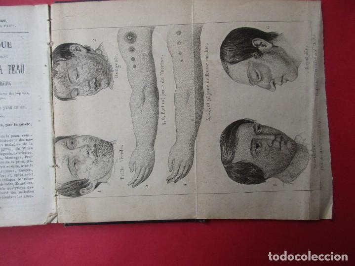 Libros antiguos: MANUEL HYGIÉNIQUE. ROB DE BOYVEAU-LAFFECTRUT. PARIS.118 PÁGINAS + 2 LÁMINAS PLEGADAS. 14 X 9 CM. - Foto 4 - 168419860