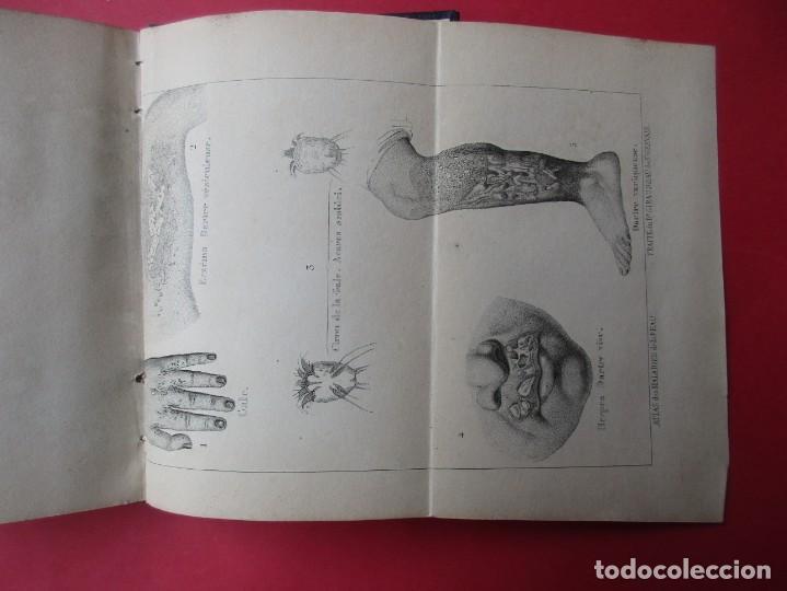 Libros antiguos: MANUEL HYGIÉNIQUE. ROB DE BOYVEAU-LAFFECTRUT. PARIS.118 PÁGINAS + 2 LÁMINAS PLEGADAS. 14 X 9 CM. - Foto 5 - 168419860