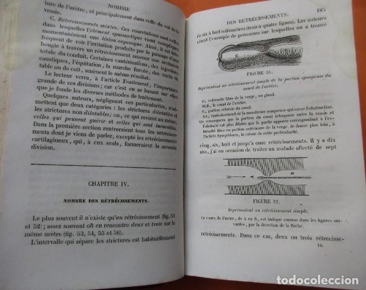 Libros antiguos: VOIES URINAIRES ET ORGANES GÉNÉRATEURS. EM. JOZAM. PARIS 1856. HOLANDESA. 779 PÁGINAS.18,5 X 12,5 CM - Foto 6 - 168664160