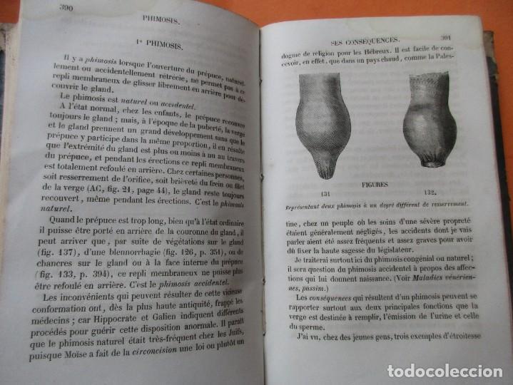 Libros antiguos: VOIES URINAIRES ET ORGANES GÉNÉRATEURS. EM. JOZAM. PARIS 1856. HOLANDESA. 779 PÁGINAS.18,5 X 12,5 CM - Foto 8 - 168664160