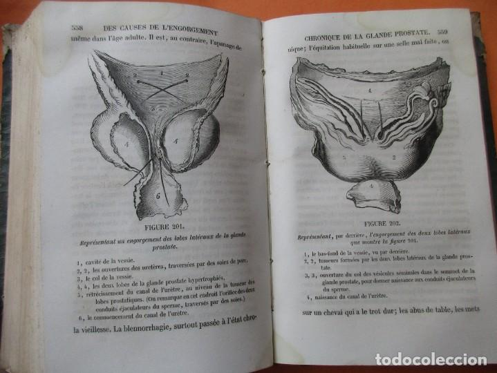Libros antiguos: VOIES URINAIRES ET ORGANES GÉNÉRATEURS. EM. JOZAM. PARIS 1856. HOLANDESA. 779 PÁGINAS.18,5 X 12,5 CM - Foto 9 - 168664160