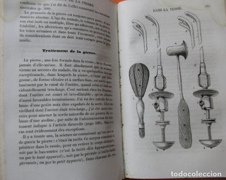 Libros antiguos: VOIES URINAIRES ET ORGANES GÉNÉRATEURS. EM. JOZAM. PARIS 1856. HOLANDESA. 779 PÁGINAS.18,5 X 12,5 CM - Foto 10 - 168664160