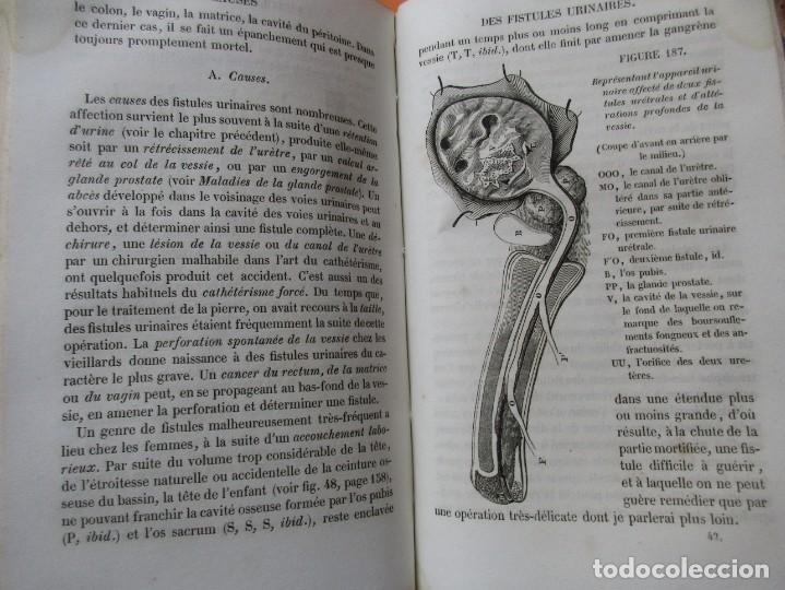 Libros antiguos: VOIES URINAIRES ET ORGANES GÉNÉRATEURS. EM. JOZAM. PARIS 1856. HOLANDESA. 779 PÁGINAS.18,5 X 12,5 CM - Foto 11 - 168664160