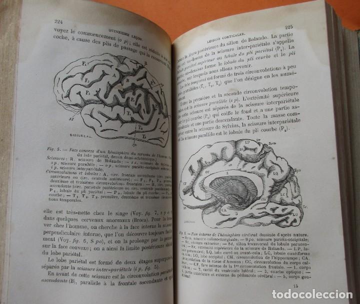 Libros antiguos: MALADIES DU SYSTÈME NERVEUX. J. GRASSET. PARIS 1878. HOLANDESA. 640 PÁGINAS. 22 X 15 CM. - Foto 6 - 168706796