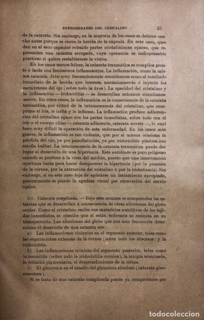 Libros antiguos: TRATADO DE ENFERMEDADES DE LOS OJOS. OBRA EN DOS TOMOS. DR. E. FUCHS. MADRID, 1893. - Foto 5 - 169537896