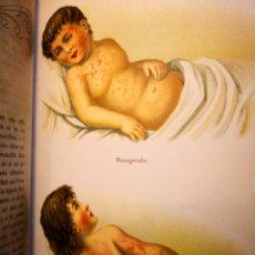 Libros antiguos: LA FEMME MEDECIN DU FOYER - VOL 1 Y 2 - MUJER Y FEMENINA 2 TOMOS - SALUD-SE MIRAN OFERTAS. Lote 171412070