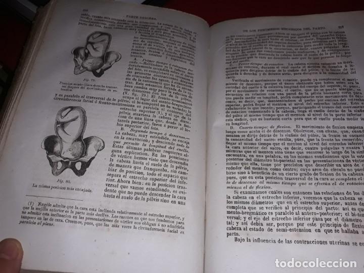 Libros antiguos: Tratado Teórico y Practico de Obstetricia por P. Cazeaux Los Dos Tomos Completo 1870 - Foto 3 - 173869629