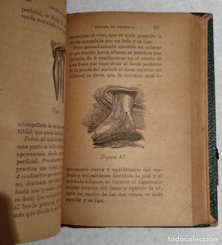 Libros antiguos: ANTIGUO LIBRO DE CIRUGÍA DE URGENCIA - A.DE DIEGO - VER TODAS LAS FOTOS - Foto 6 - 221618241