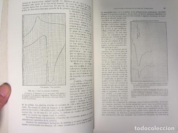 Libros antiguos: CIRUGÍA.TRATADO TEORICO-PRÁCTICO 1910-1911-1912-1914-1915. LOTE DE 5 TOMOS ILUSTRADOS- W. W. KEEN - Foto 4 - 176002245