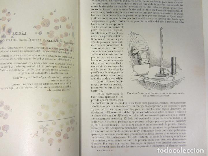 Libros antiguos: CIRUGÍA.TRATADO TEORICO-PRÁCTICO 1910-1911-1912-1914-1915. LOTE DE 5 TOMOS ILUSTRADOS- W. W. KEEN - Foto 5 - 176002245