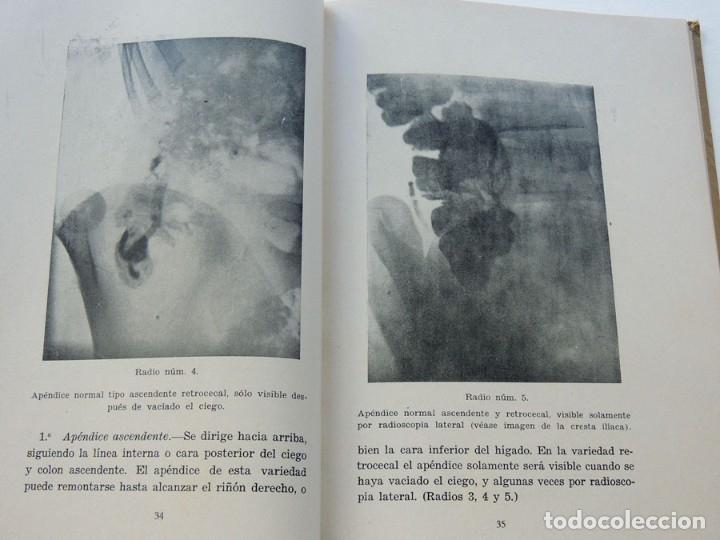 Libros antiguos: HOSPITAL DE LA SANTA CRUZ Y SAN PABLO - BARCELONA / PATOLOGIA DIGESTIVA / F. GALLART MONES / 1931 - Foto 2 - 177400068