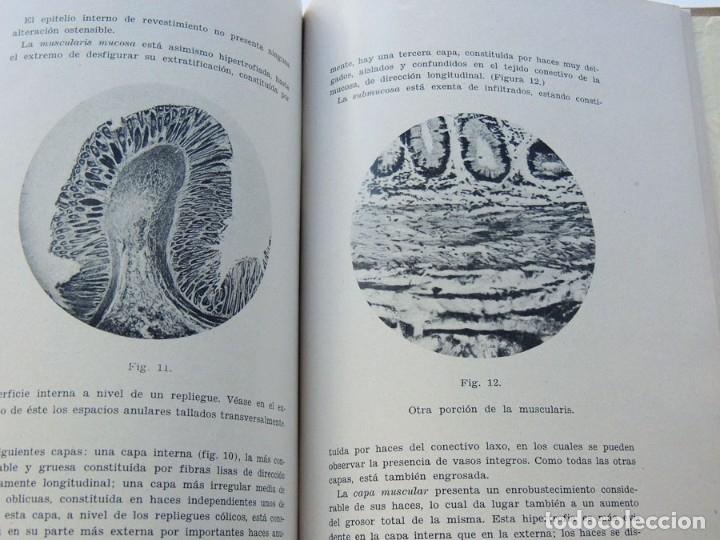 Libros antiguos: HOSPITAL DE LA SANTA CRUZ Y SAN PABLO - BARCELONA / PATOLOGIA DIGESTIVA / F. GALLART MONES / 1931 - Foto 3 - 177400068
