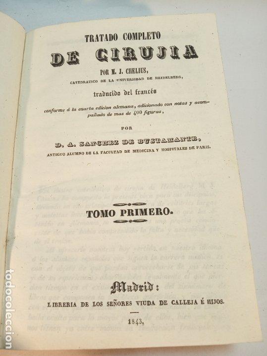 Libros antiguos: Tratado completo de Cirujía. M. J. Chelius. 3 Tomos. Librería Sres. Viuda de Calleja e hijos. 1843. - Foto 6 - 178326731