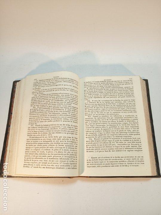 Libros antiguos: Tratado completo de Cirujía. M. J. Chelius. 3 Tomos. Librería Sres. Viuda de Calleja e hijos. 1843. - Foto 7 - 178326731