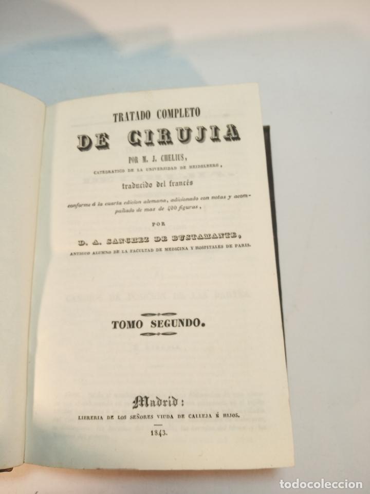 Libros antiguos: Tratado completo de Cirujía. M. J. Chelius. 3 Tomos. Librería Sres. Viuda de Calleja e hijos. 1843. - Foto 12 - 178326731