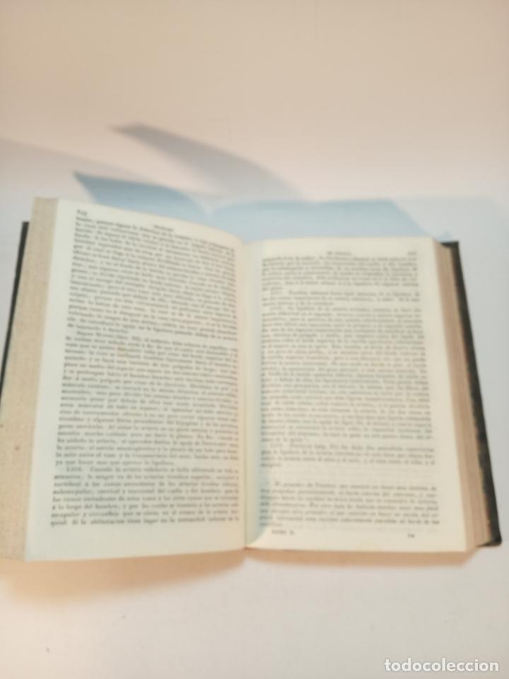 Libros antiguos: Tratado completo de Cirujía. M. J. Chelius. 3 Tomos. Librería Sres. Viuda de Calleja e hijos. 1843. - Foto 14 - 178326731