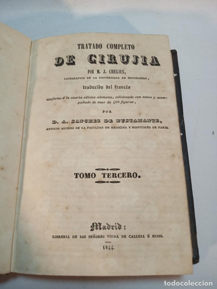 Libros antiguos: Tratado completo de Cirujía. M. J. Chelius. 3 Tomos. Librería Sres. Viuda de Calleja e hijos. 1843. - Foto 19 - 178326731