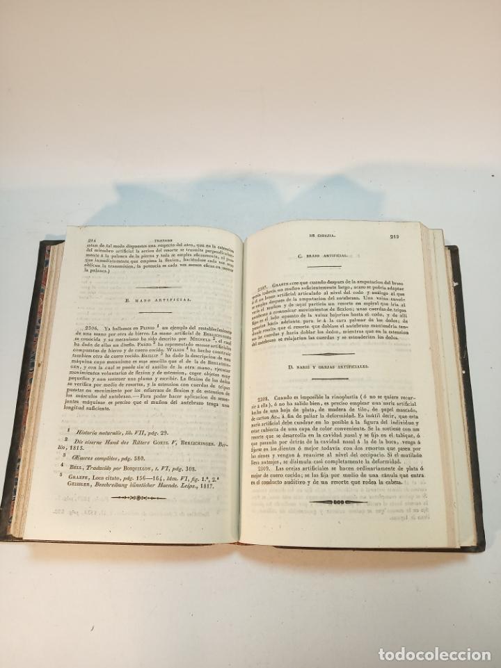Libros antiguos: Tratado completo de Cirujía. M. J. Chelius. 3 Tomos. Librería Sres. Viuda de Calleja e hijos. 1843. - Foto 20 - 178326731