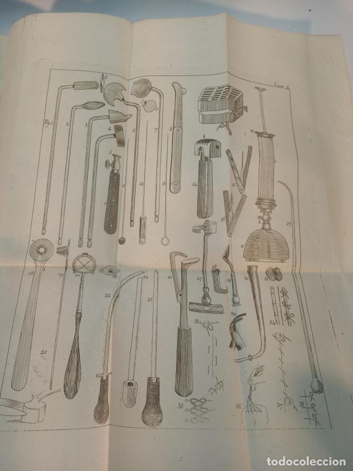 Libros antiguos: Tratado completo de Cirujía. M. J. Chelius. 3 Tomos. Librería Sres. Viuda de Calleja e hijos. 1843. - Foto 23 - 178326731