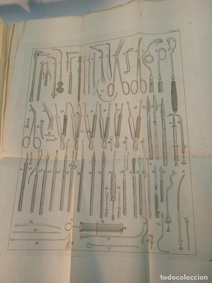 Libros antiguos: Tratado completo de Cirujía. M. J. Chelius. 3 Tomos. Librería Sres. Viuda de Calleja e hijos. 1843. - Foto 26 - 178326731