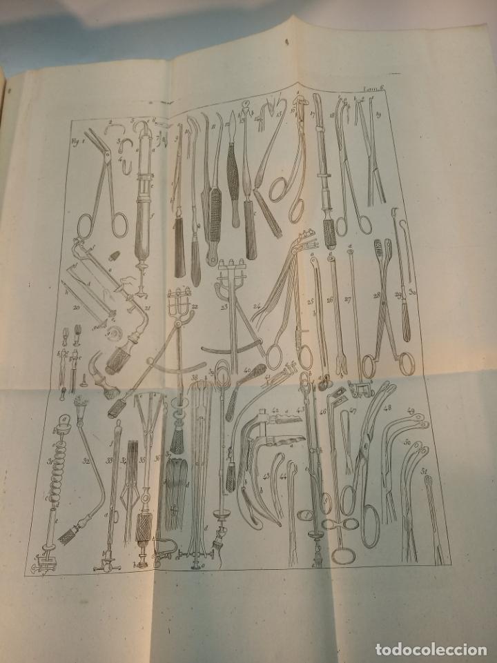 Libros antiguos: Tratado completo de Cirujía. M. J. Chelius. 3 Tomos. Librería Sres. Viuda de Calleja e hijos. 1843. - Foto 27 - 178326731