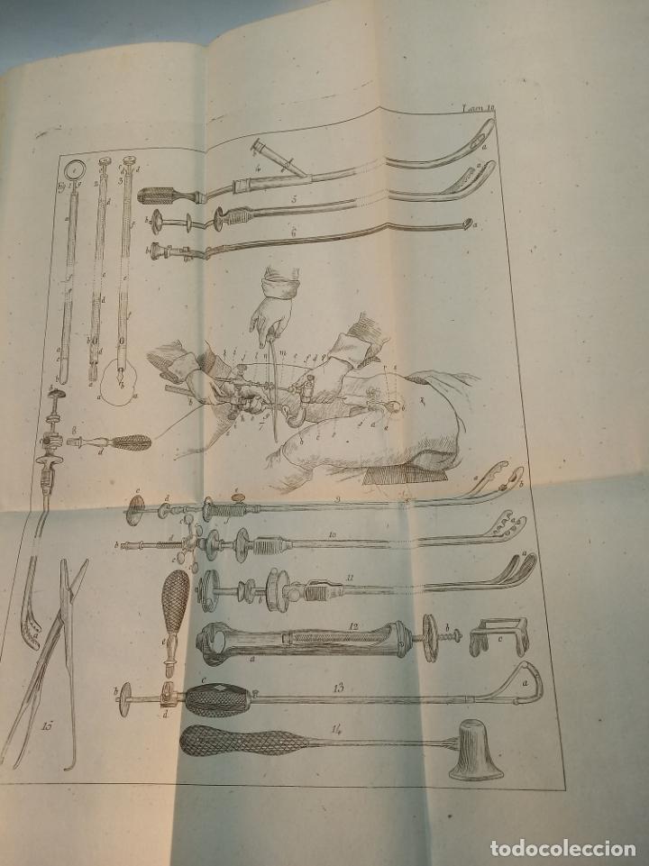 Libros antiguos: Tratado completo de Cirujía. M. J. Chelius. 3 Tomos. Librería Sres. Viuda de Calleja e hijos. 1843. - Foto 31 - 178326731