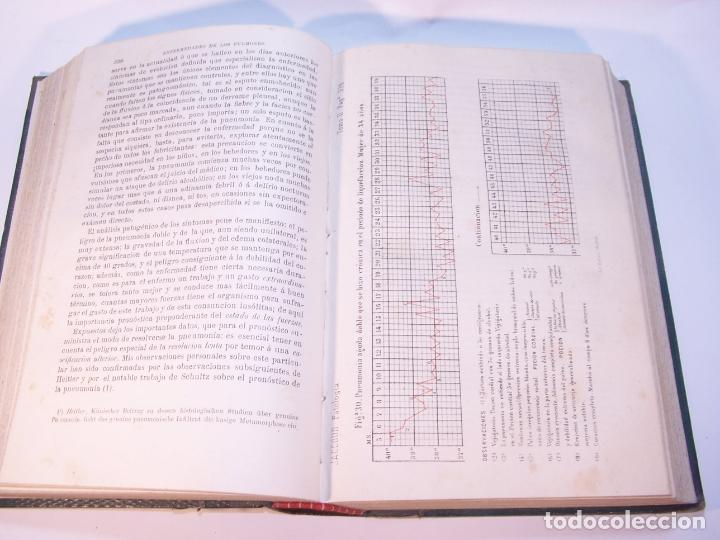 Libros antiguos: Tratado de patología interna. S. Jaccoud. D. Joaquín Gassó. 3 tomos. Carlos Bailly-Bailliere. 1881. - Foto 11 - 178986296
