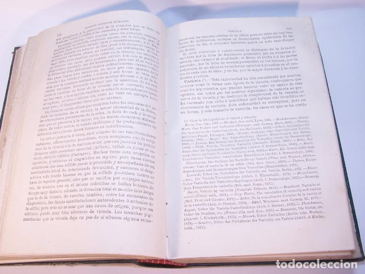 Libros antiguos: Tratado de patología interna. S. Jaccoud. D. Joaquín Gassó. 3 tomos. Carlos Bailly-Bailliere. 1881. - Foto 17 - 178986296